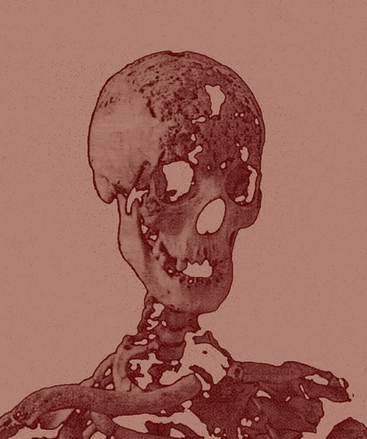 Crâne de syphilitique