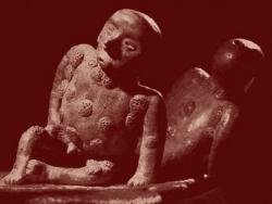 Syphilis pré colombienne
