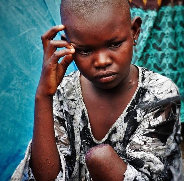 © Ley Uwera. Mave Grâce, 11, Irturi Province DRC, 2018