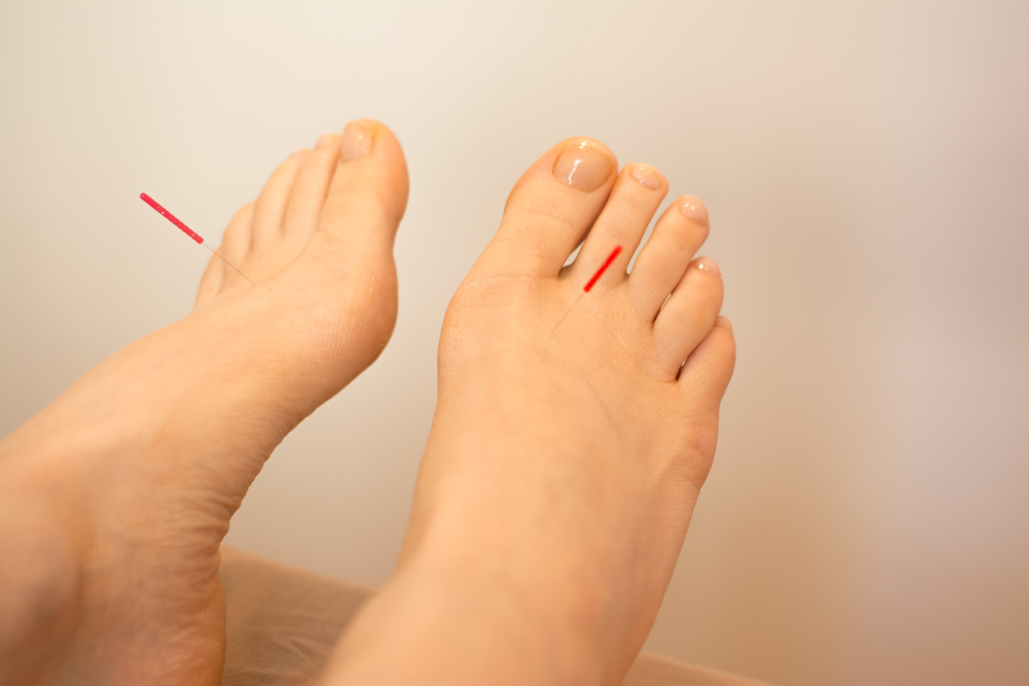 Treating Anxiety with Acupuncture — 8 Point Wellness