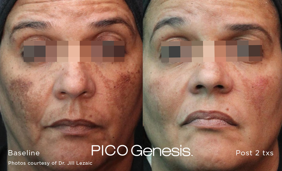 PICO-Genesis-facial-skin-before-after-pics-san-diego-1