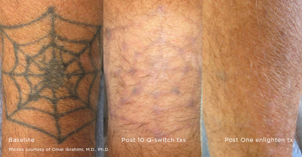 Laser tattoo removal treatment for Tattoo removal healing