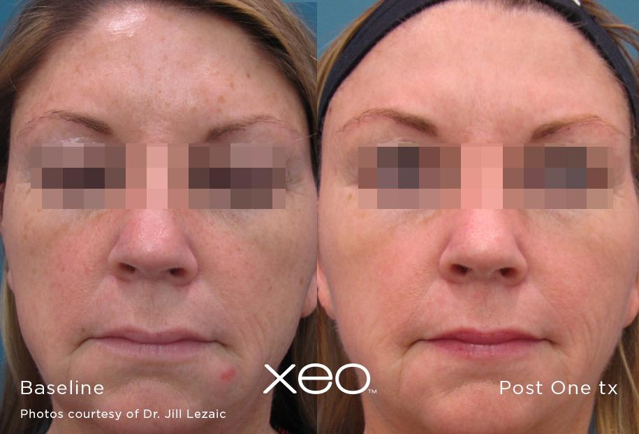 hyperpigmentation-treatment-san-diego-2.jpg