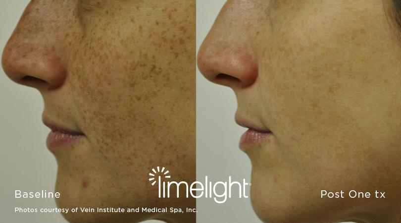 hyperpigmentation-treatment-san-diego-3.jpg