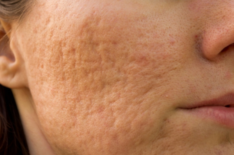 Collagen Induction Therapy For Acne Scars