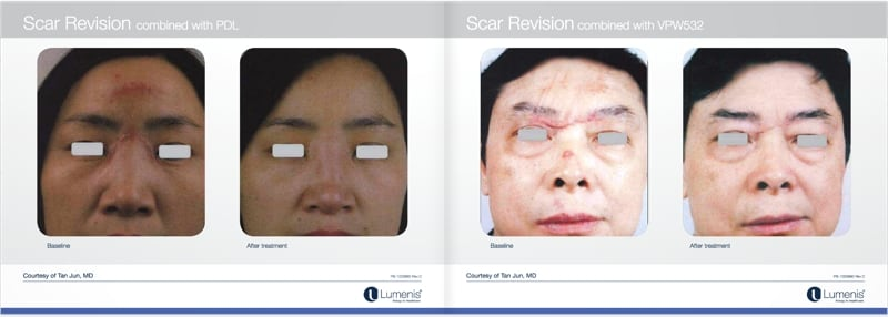 Scar-removal-san-diego-before-and-after-photos-1.jpg