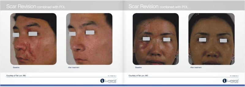 Scar-removal-san-diego-before-and-after-photos-3.jpg