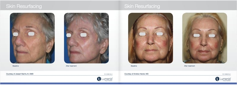 Total-fx-laser-skin-resurfacing-before-and-after-photo-3.jpg