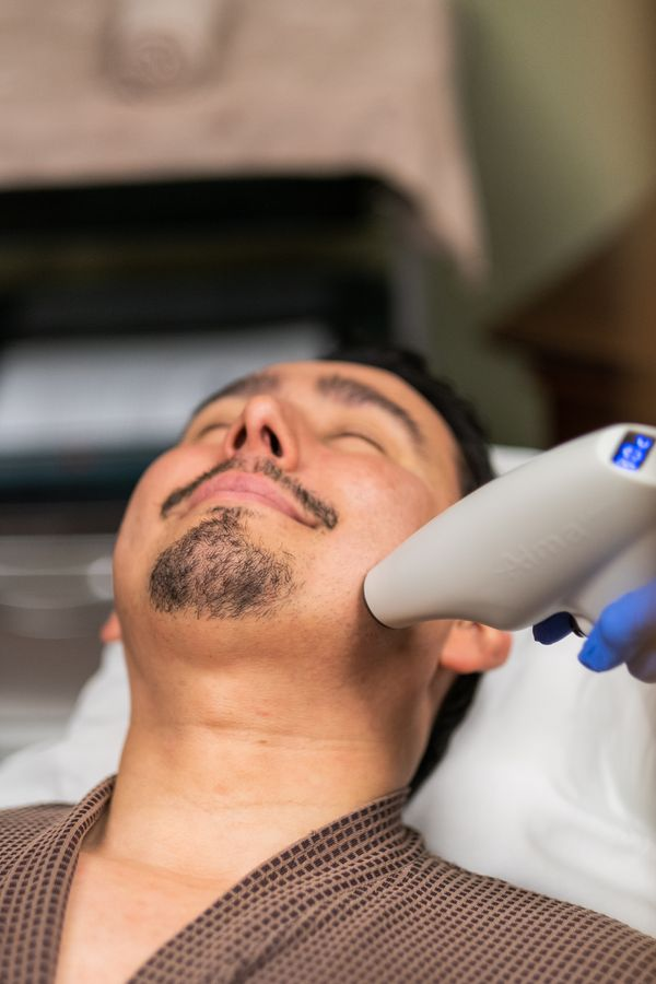 male-cosmetic-procedure-san-diego-siti-med-spa-17.jpeg
