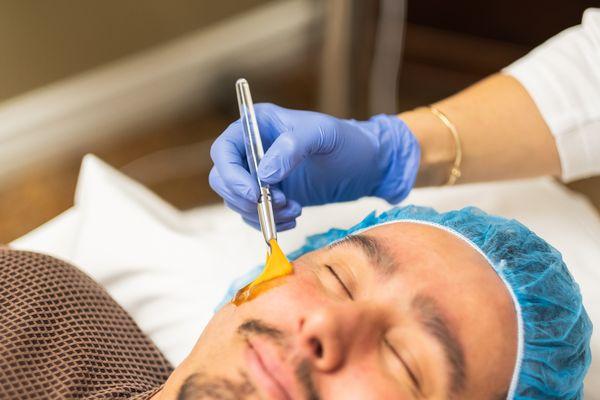 male-cosmetic-procedure-san-diego-siti-med-spa-19.jpeg