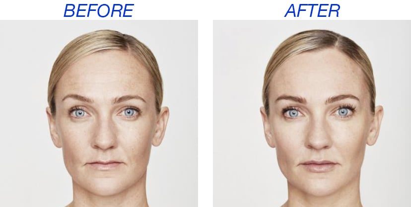 Restylane Before And After Siti Med Spa San Diego