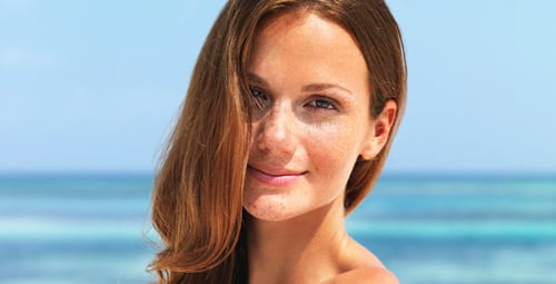 Melasma Treatment San Diego Siti Med Spa