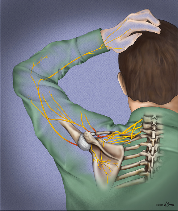 <strong>Brachial Plexus Injury</strong>