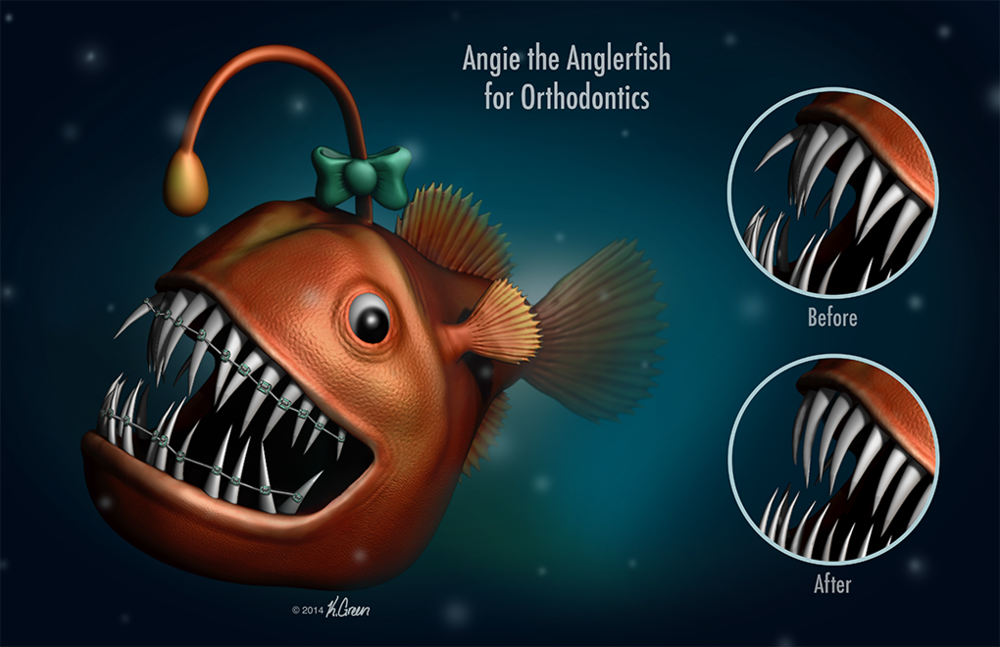 <strong>Angie the Anglerfish for Orthodontics</strong>