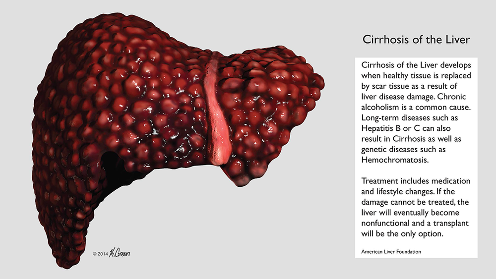 <strong>Cirrhosis of the Liver</strong>