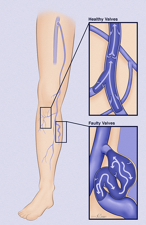 <strong>Healthy vs. Faulty Valves in Varicose Veins</strong>
