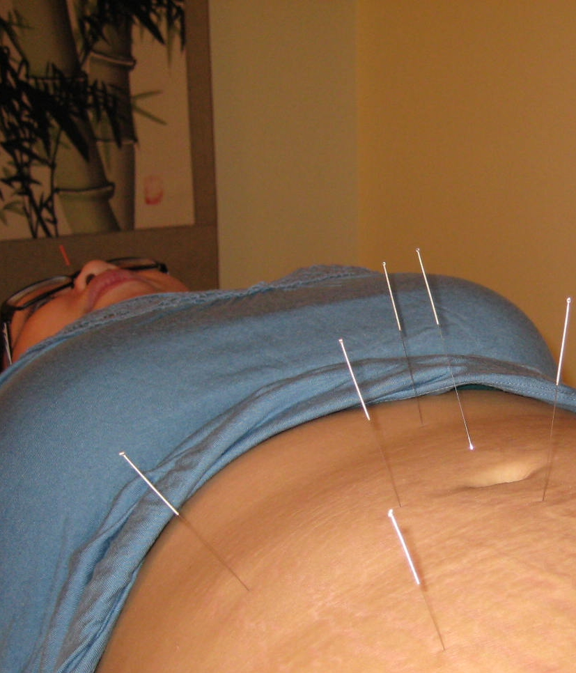 ACUPUNCTURE IVF IN RICHMOND VA