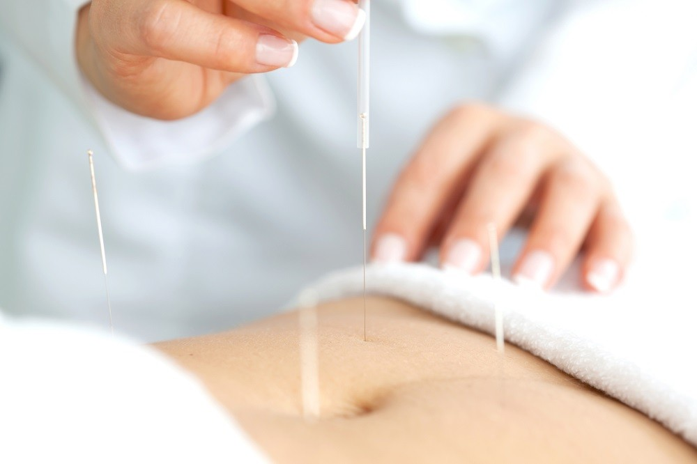 fertility-acupuncture-richmond-va-1.jpg