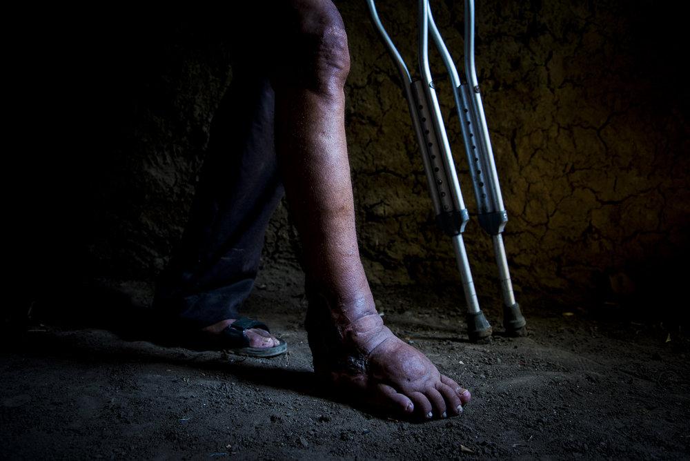 """A Rafael Alonso Miranda la violencia le """"jodio"""" la pierna por que las paredes de su casa no eran tan resistentes a los cilindros que lanzaban las FARC-EP . Nunca quizo irse, siempre los enfrento como quinen sabe que """"el que no debe nada teme"""", ahora en muletas espera salir adelante."""