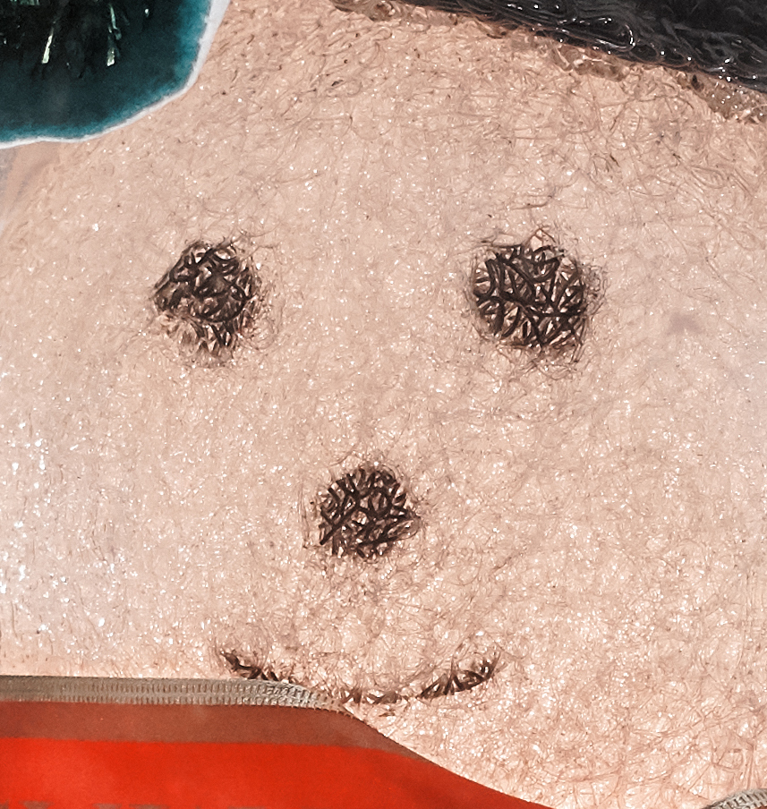 Snowman's face - 100% crop (click to enlarge)