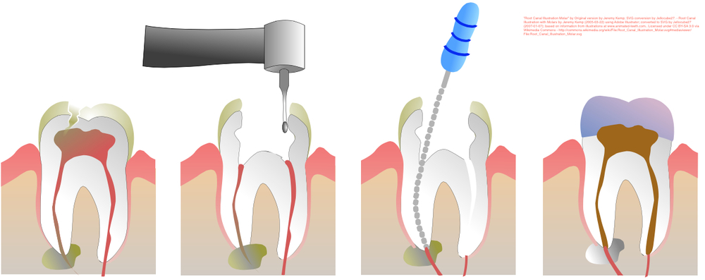 1) Infected Pulp                    2) Tooth is accessed          3) Canals cleaned with files         4) Canals are filled                                                                                Root Canal Procedure