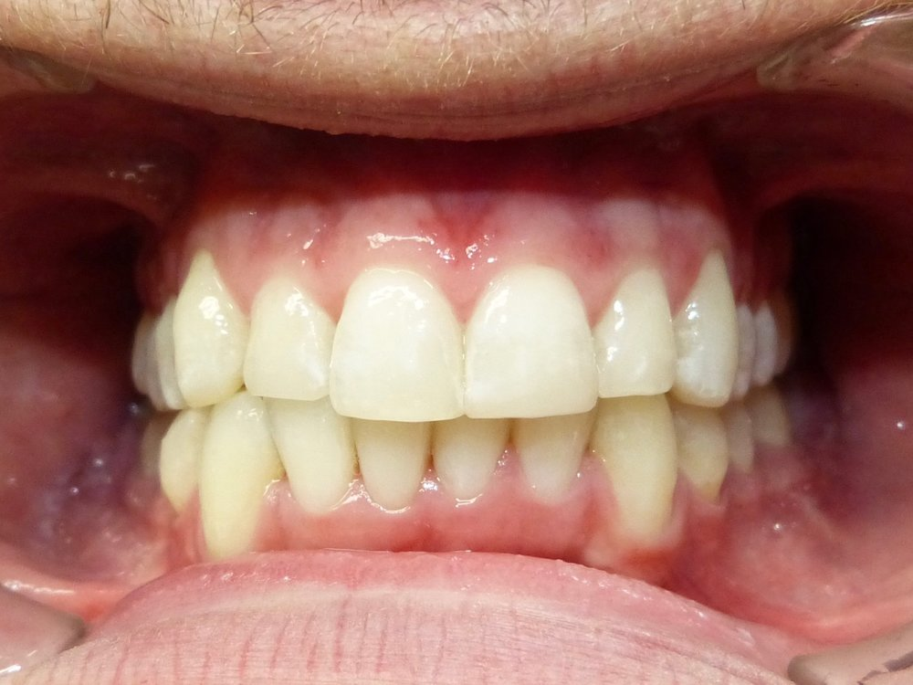After Invisalign - with whitening and some adjustment of incisal edge position