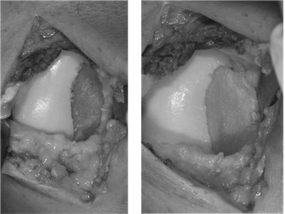 Knorpeldefekt und Defektdeckung mittels Transplantation