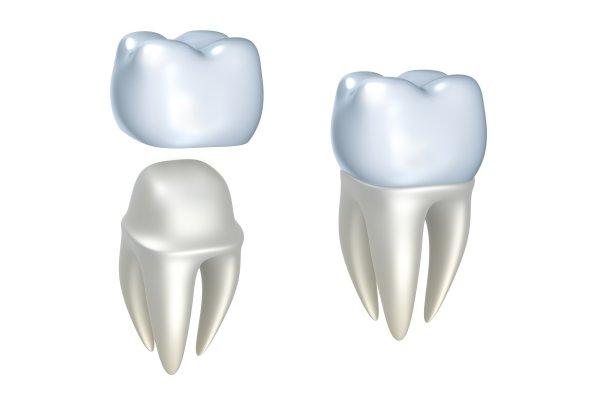 Crown Dentist