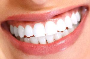 Plano-Dentist