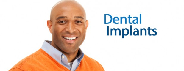 featured-dental-implants-618x239.jpg