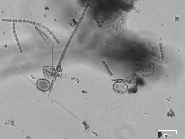 Cyanobacteria chains