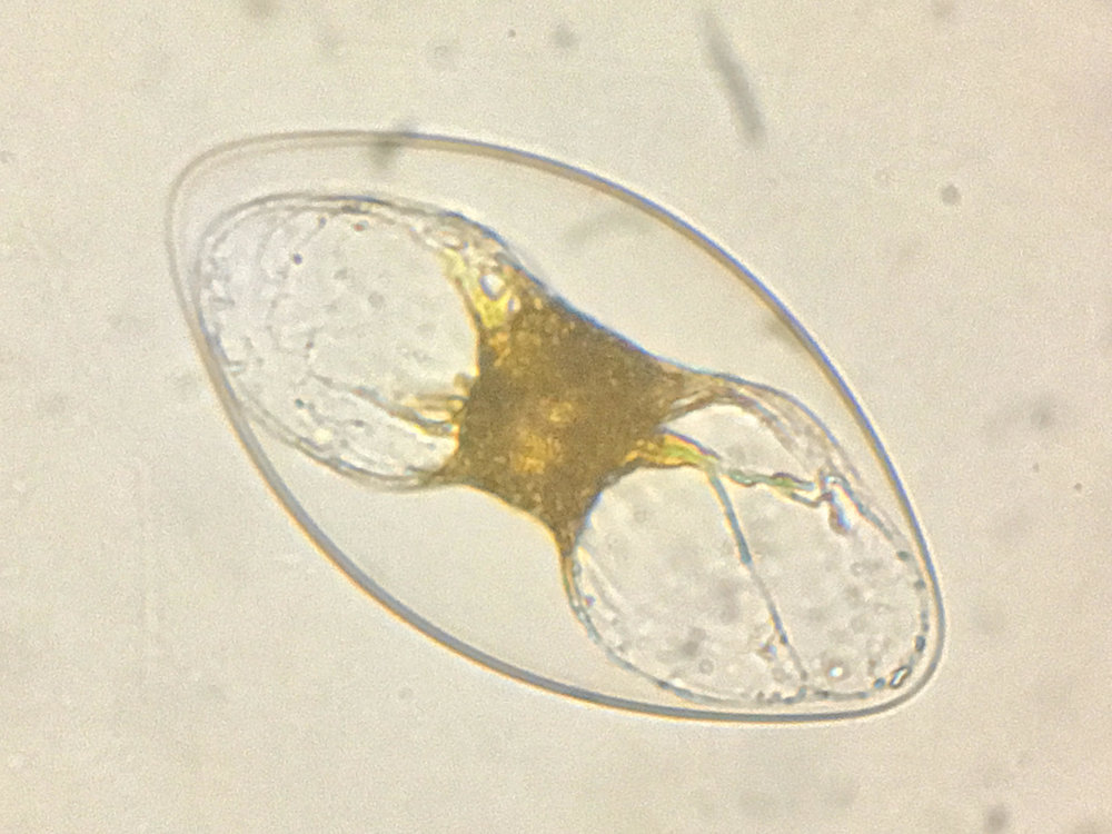 Pyrocystis 400x magnification. Photo by Damon Tighe