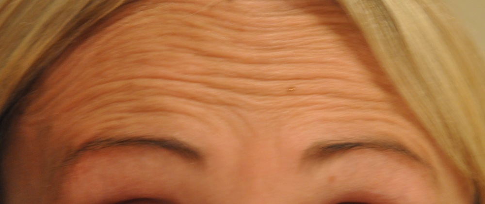 forehead lines before.jpg