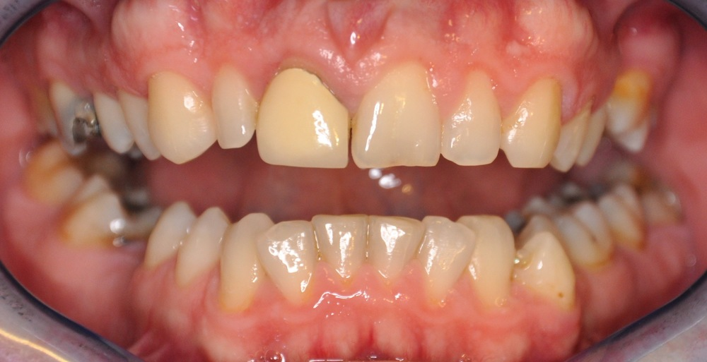 single crown and veneer before.jpg