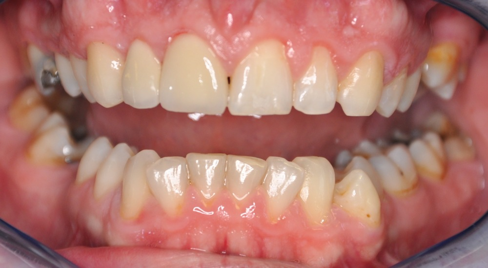 single crown and veneer after.jpg
