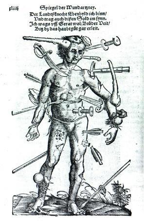woundman