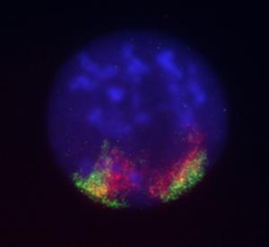 Epifluorescence + Live imaging