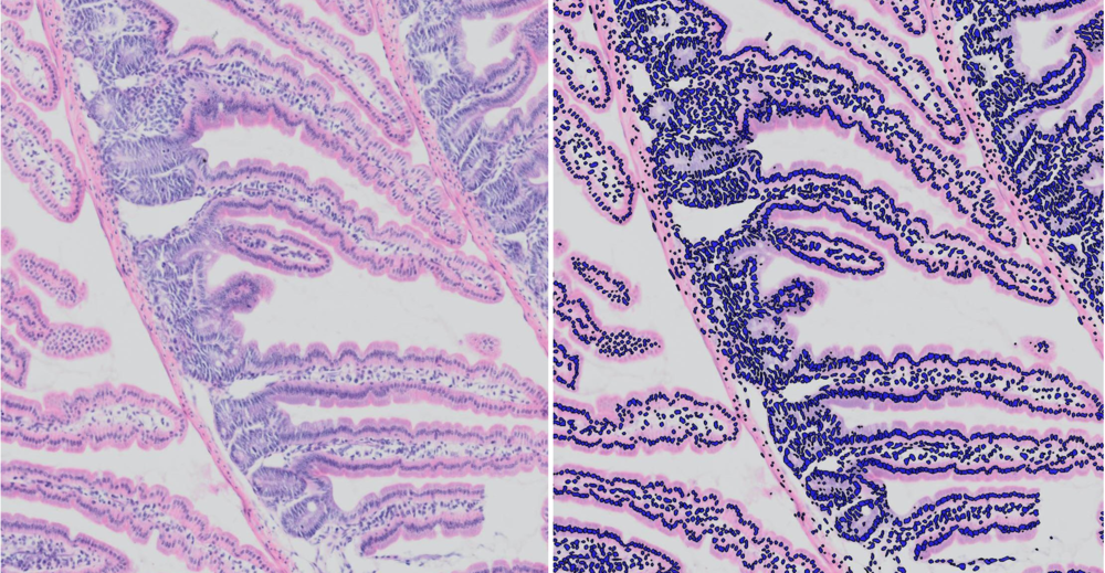 Examples of contrast staining for use on Dotslide or Nanozoomer, do's and don'ts