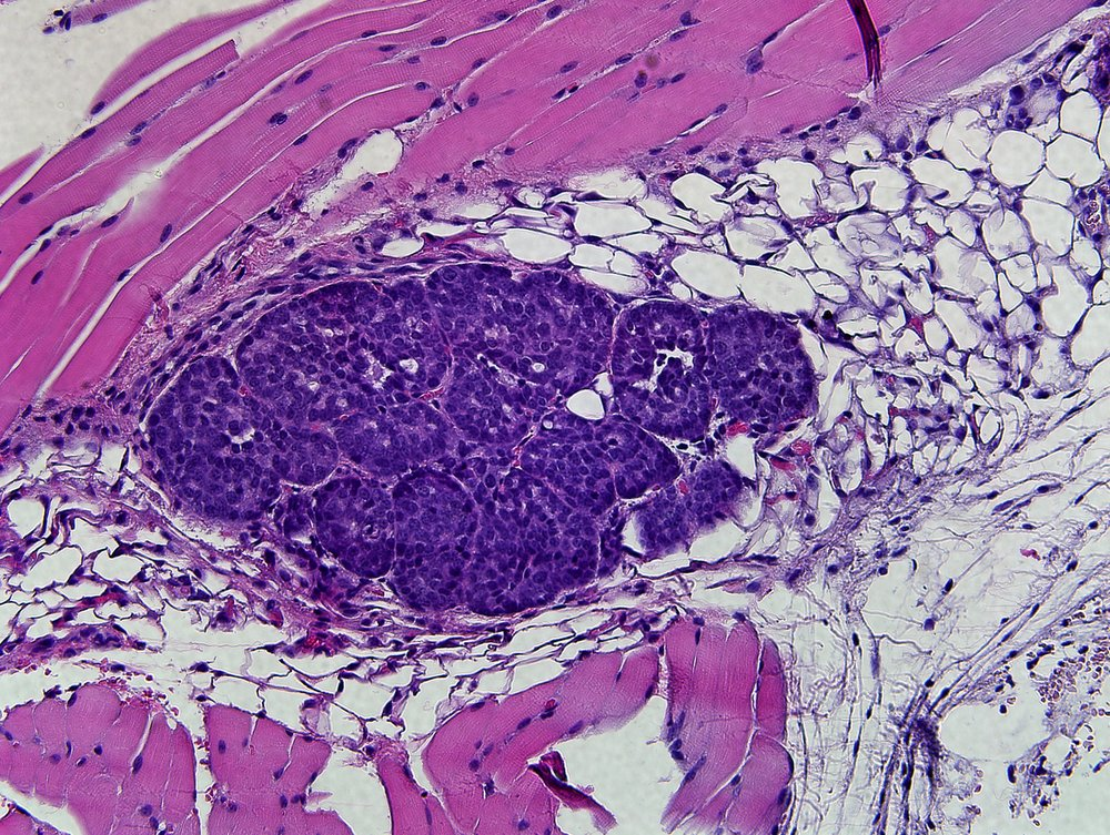 Image 5:  Histology slide showing a tumourous tissue within the mammary gland