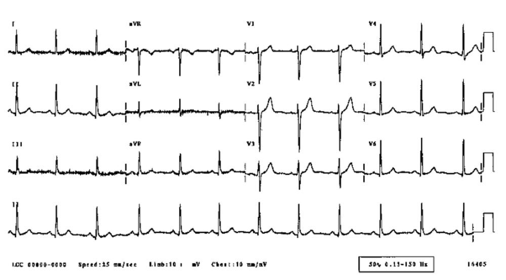 normal ECG.jpg