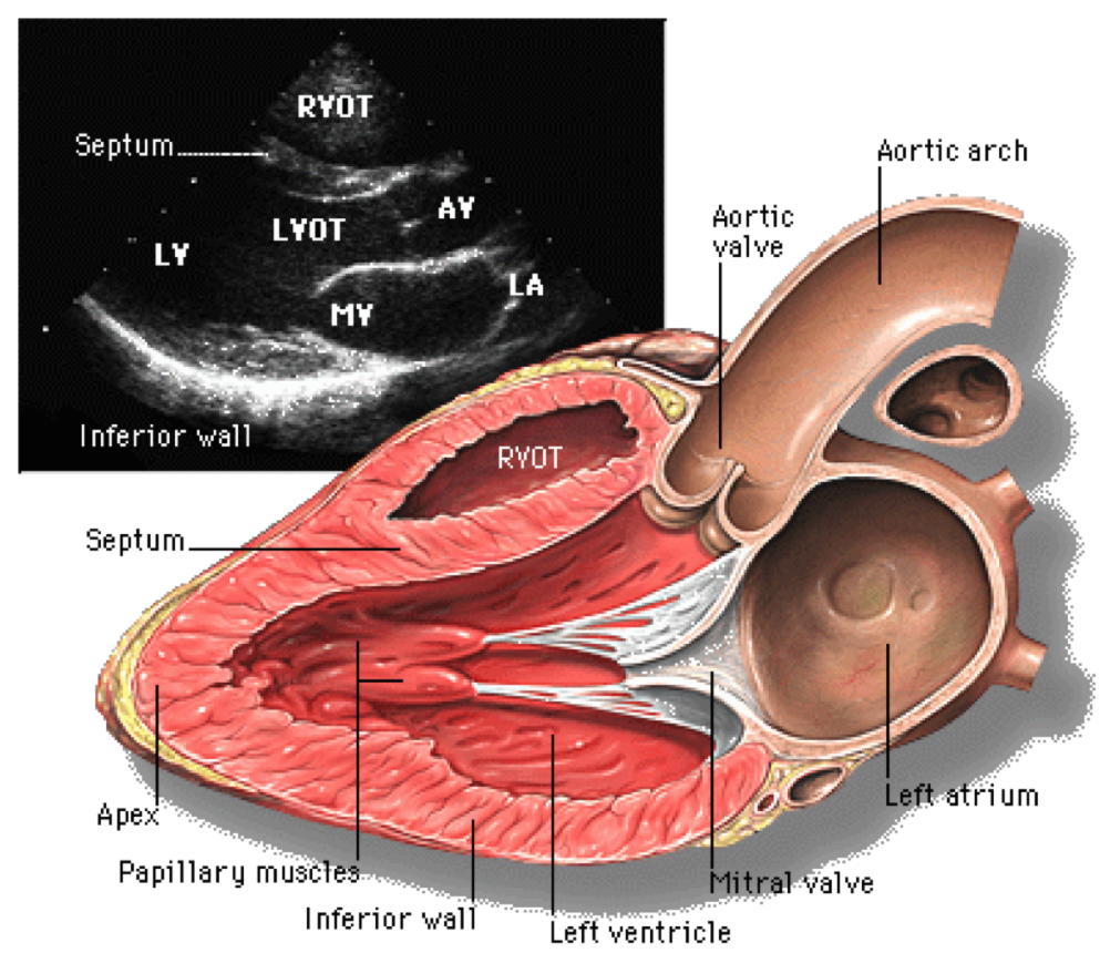 Parasternal long axis view of the heart, as an illustration of how echocardiogram assesses various cardiac chambers, and heart valves. Ref: Yale Atlas of Echocardiography.