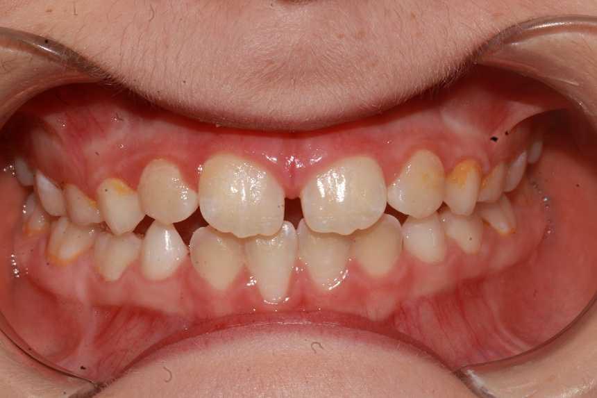 Mouth_1.jpg
