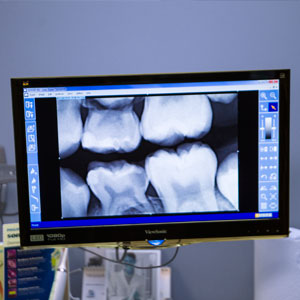 jubilee-dental-general-treatments-4.jpg