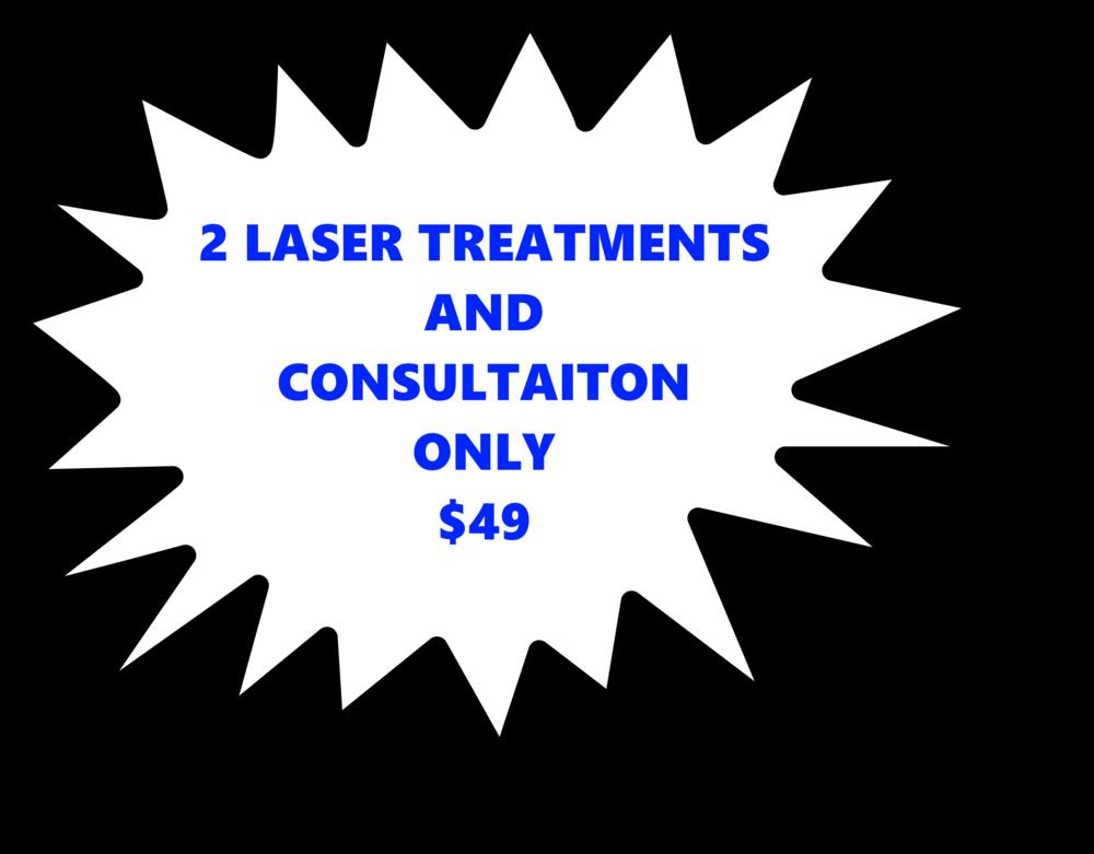 Laser offer.png
