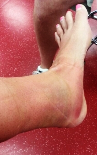 The result of my amphetamine overdose - 2 Months in a boot!
