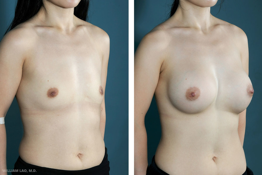 L, 32, Asian    L is petite and always had been flat chested. Her breasts also sit low on her chest wall. She also expressed difficulty in wearing more feminine clothes. Due to the likelihood of scarring in Asian people and her preference not to have any visible scar from the frontal view, transaxillary endoscopic breast augmentation was done.     VIEW STORY