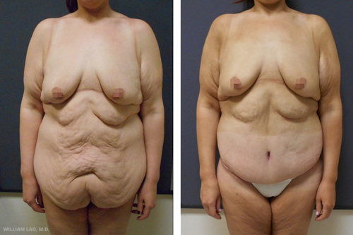 Weight loss diet after thyroidectomy image 4
