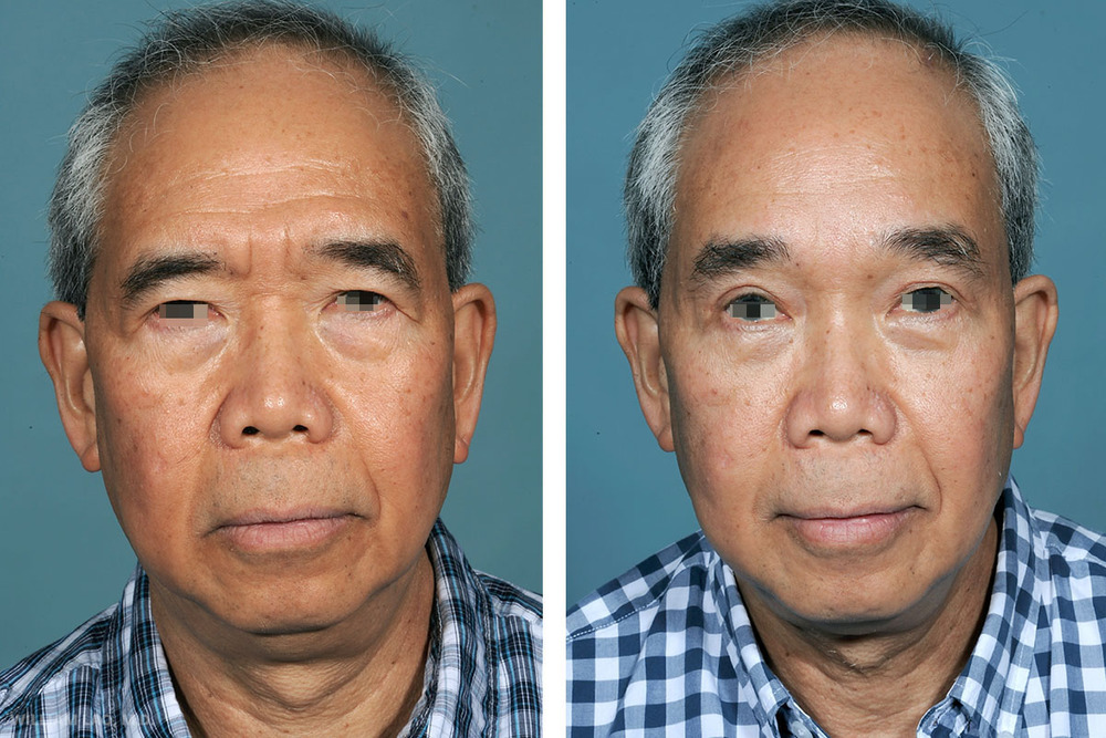 F, 61, Asian   F was introduced to my clinic by his wife for evaluation of eyelid and brow rejuvenation. He was constantly bothered by the angry and aged appearance of his eyes. He constantly felt he had to forcefully use his forehead to elevate his brow and he had problems seeing the upper half of his visual field. Notice the difference between his brow and eyelid position before and after surgery.  He not only can see better but also looks happier.    VIEW STORY