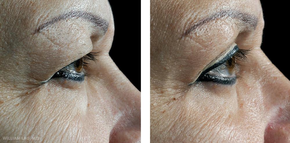 D,57 歲,白人   D是一位退休警官,希望臉部回春而求診。她的上眼皮有許多多餘皮膚覆蓋眼睛、臉部及頸部均出現嚴重下垂現象。據此,進行上眼皮及下眼瞼手術,同時配合臉部及頸部拉皮手術。   瞭解更多