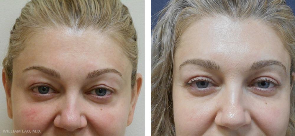 S,36歲,白人   S小姐兩年前曾由其他整形醫師動過上眼皮手術,在復原期間曾經跌倒並造成左上眼皮凹陷。經過局部麻醉上眼皮修正手術,她現在非常快樂,請看她左上眼皮平滑的輪廓!   瞭解更多
